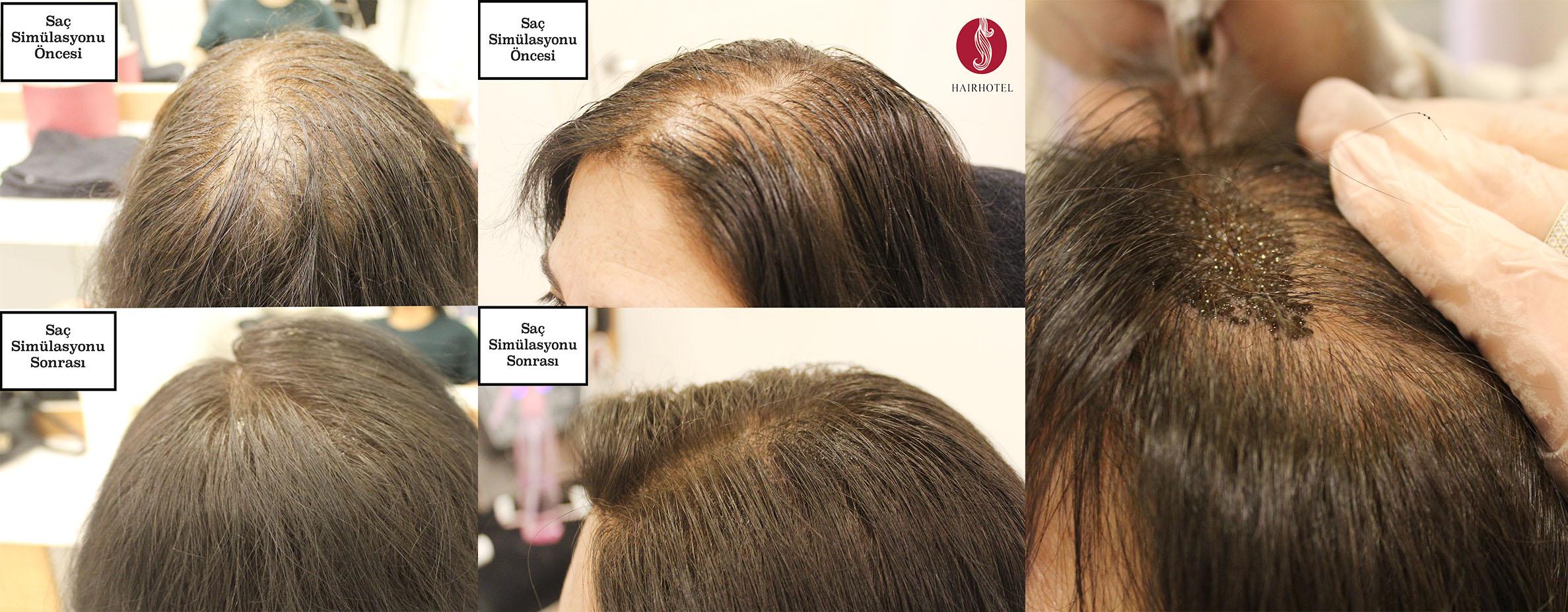 Is Hair Simulation Harmful?